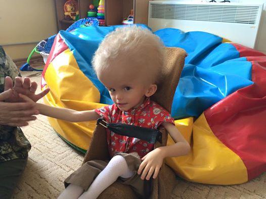 Das Kind wurde aufgrund seines Kopfes verstoßen – 5 Jahre später bekommt es seine süße Rache