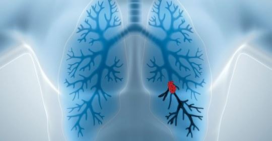 Lungenembolie sofort erkennen und behandeln