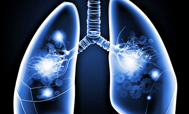 Spirometrie – der Lungencheck einfach erklärt